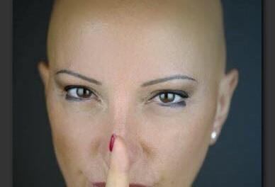 Alopecia Areata: deve essere riconosciuta come malattia dal SSN!